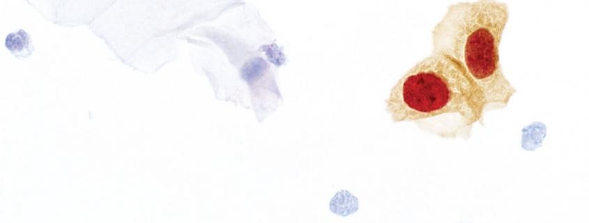 Zdravje žensk – CINtec® PLUS Cytology
