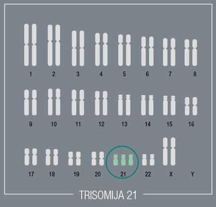 Trisomija 21